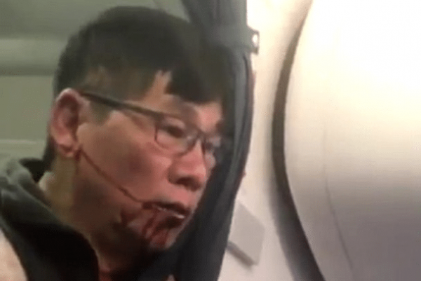 Poker Pro Dragged Off United Plane Goes All In With Likely 'Criminal' Suit