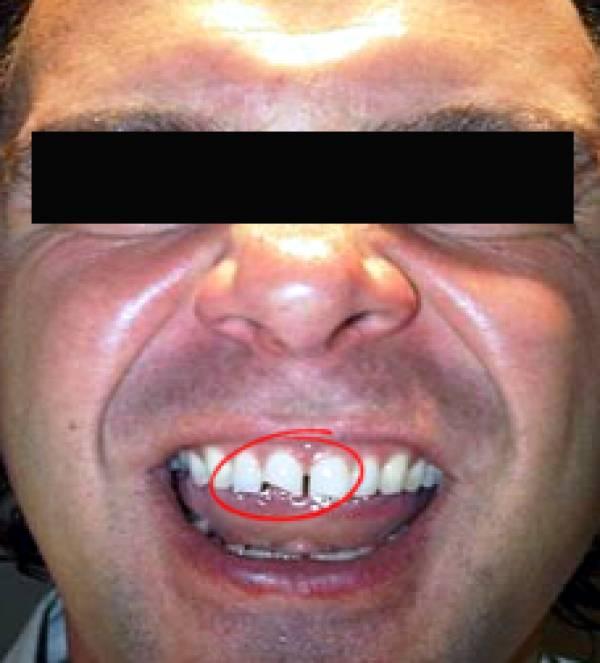 Michael Caselli Teeth
